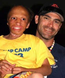 Photo: AARBF.org, Isaiah with camp counselor
